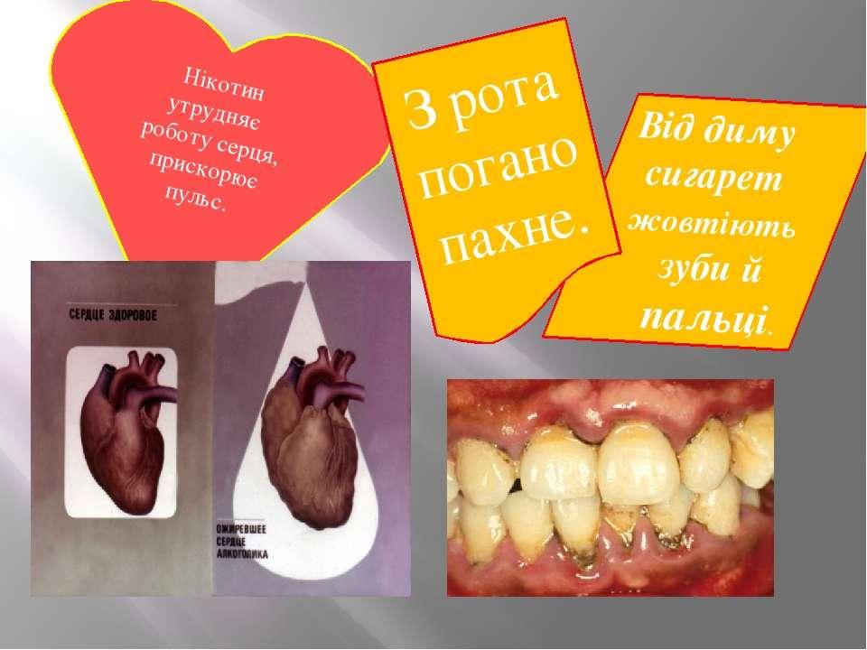 Від диму сигарет жовтіють зуби й пальці. Нікотин утрудняє роботу серця, приск...