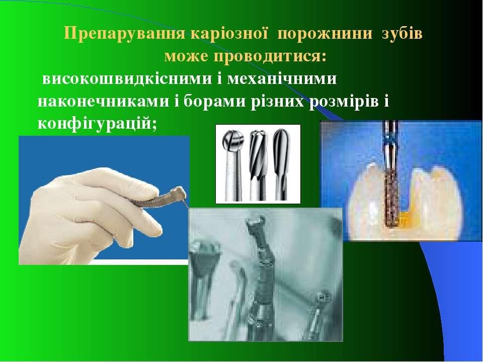 Препарування каріозної порожнини зубів може проводитися: високошвидкісними і ...