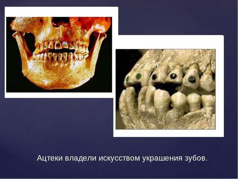 Ацтеки владели искусством украшения зубов.