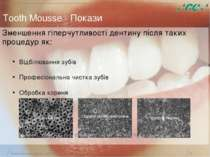 Минимальное вмешательство, 15/05/2006 * Tooth Mousse - Покази Зменшення гіпер...