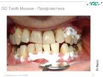 Минимальное вмешательство, 15/05/2006 * GC Tooth Mousse - Профілактика Pr Rei...