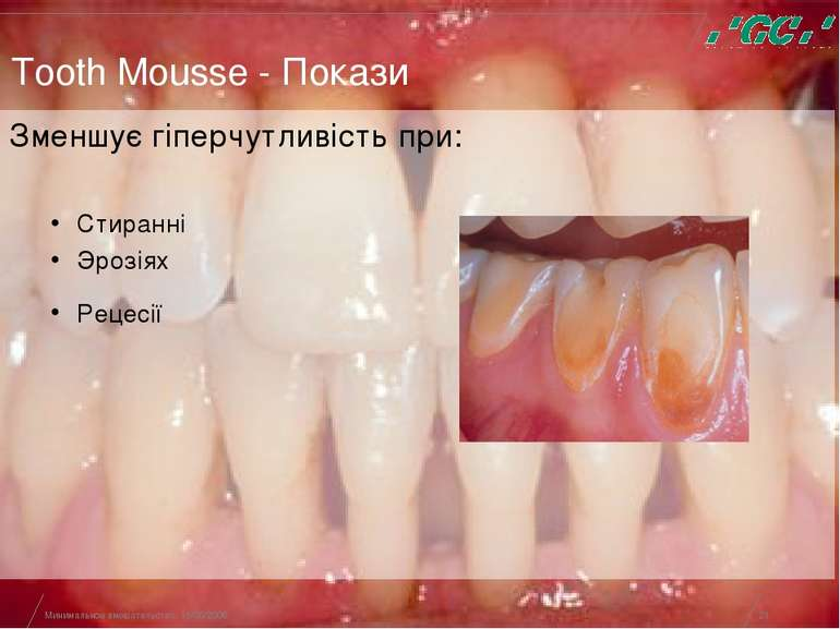 Минимальное вмешательство, 15/05/2006 * Tooth Mousse - Покази Зменшує гіперчу...