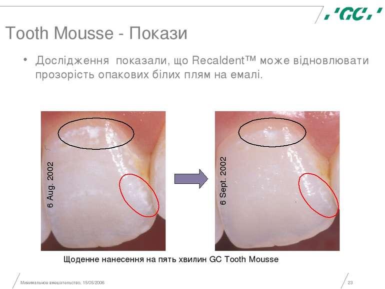 Минимальное вмешательство, 15/05/2006 * Tooth Mousse - Покази Дослідження пок...