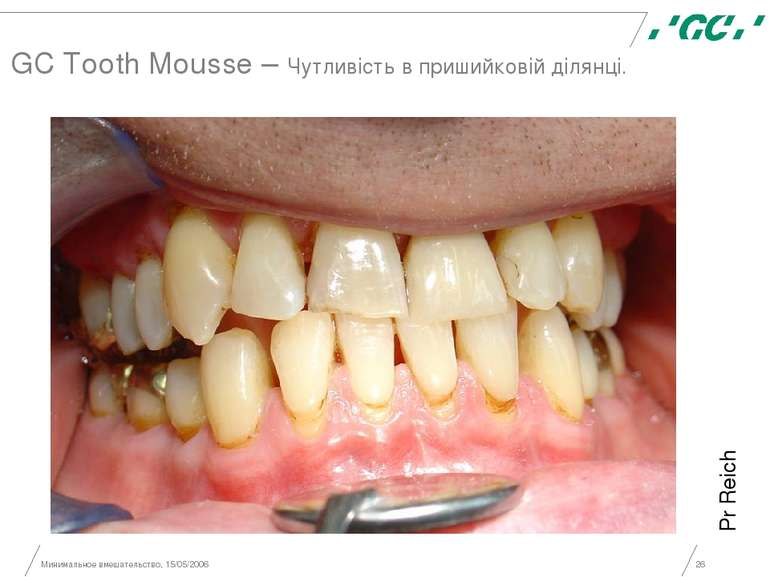 Минимальное вмешательство, 15/05/2006 * GC Tooth Mousse – Чутливість в приший...