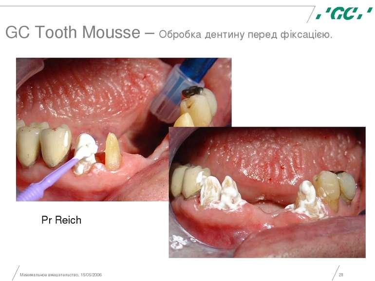 Минимальное вмешательство, 15/05/2006 * GC Tooth Mousse – Обробка дентину пер...