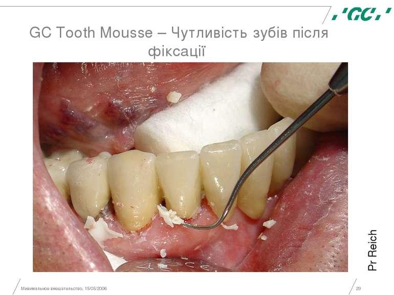 Минимальное вмешательство, 15/05/2006 * GC Tooth Mousse – Чутливість зубів пі...