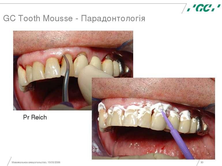 Минимальное вмешательство, 15/05/2006 * GC Tooth Mousse - Парадонтологія Pr R...