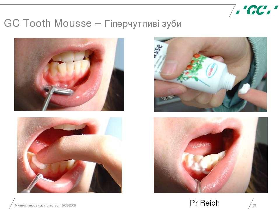 Минимальное вмешательство, 15/05/2006 * GC Tooth Mousse – Гіперчутливі зуби P...
