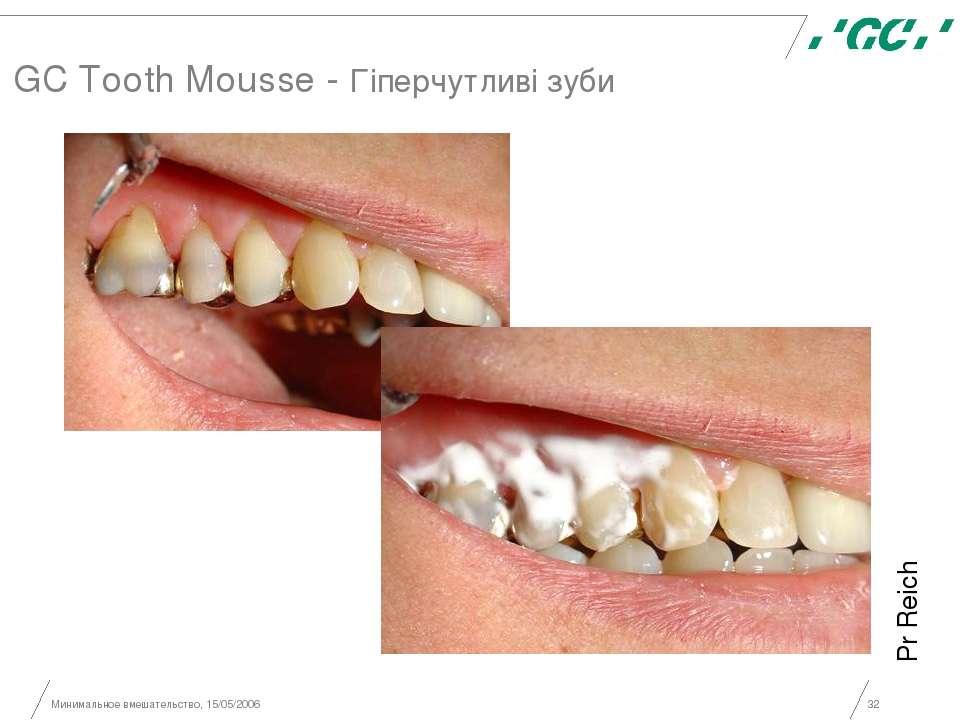 Минимальное вмешательство, 15/05/2006 * GC Tooth Mousse - Гіперчутливі зуби P...