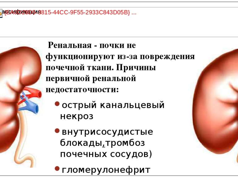 Ренальная - почки не функционируют из-за повреждения почечной ткани. Причины ...