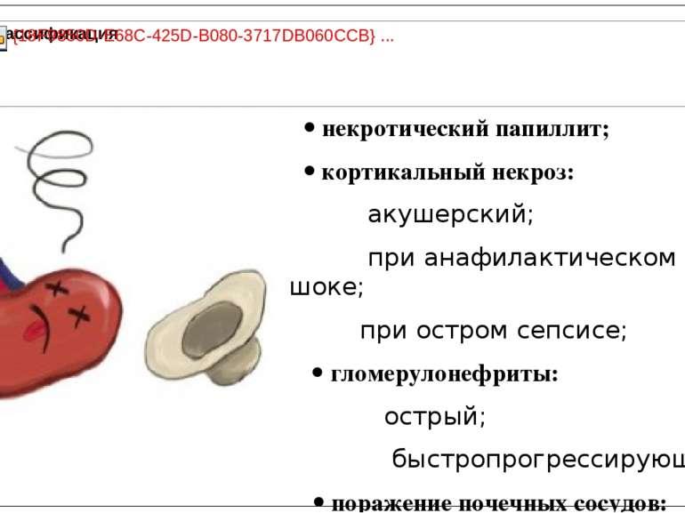 некротический папиллит; кортикальный некроз: акушерский; при анафилактическом...
