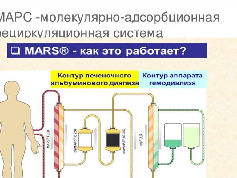 МАРС -молекулярно-адсорбционная рециркуляционная система