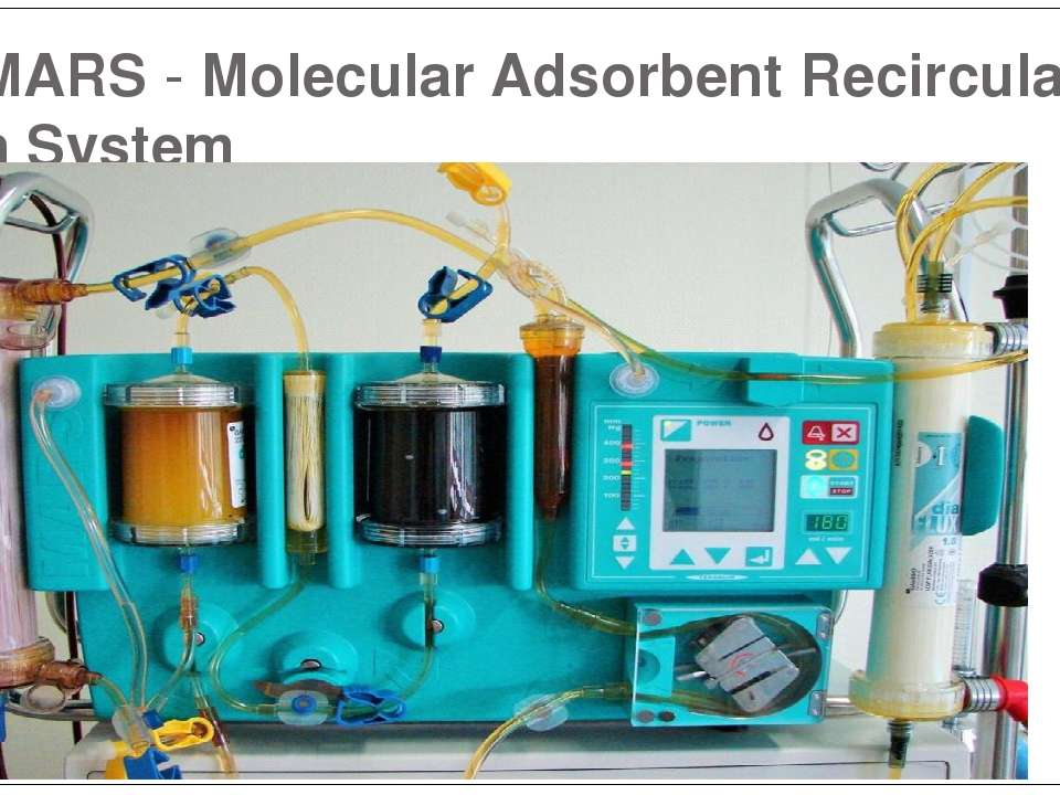 MARS-MolecularAdsorbentRecirculationSystem