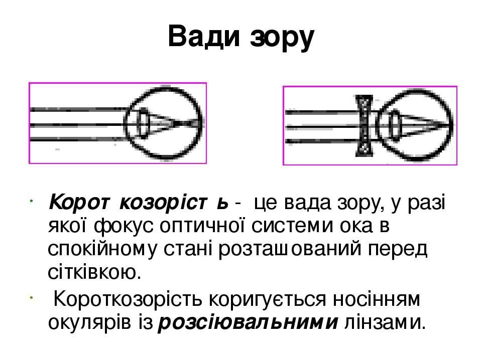 Вади зору Короткозорість - це вада зору, у разі якої фокус оптичної системи о...
