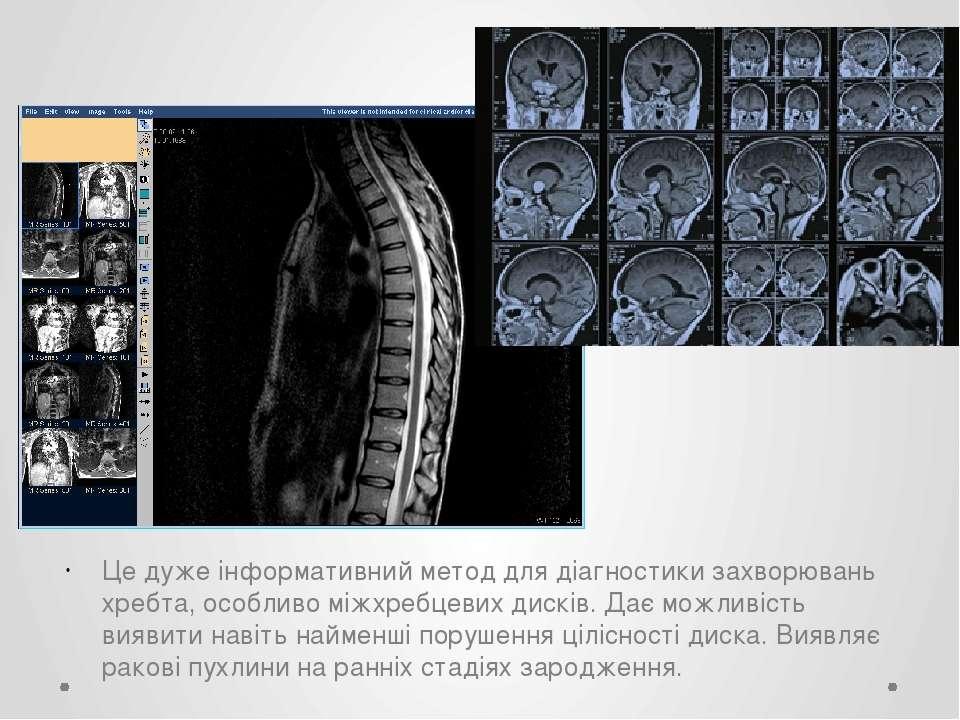 Це дуже інформативний метод для діагностики захворювань хребта, особливо міжх...