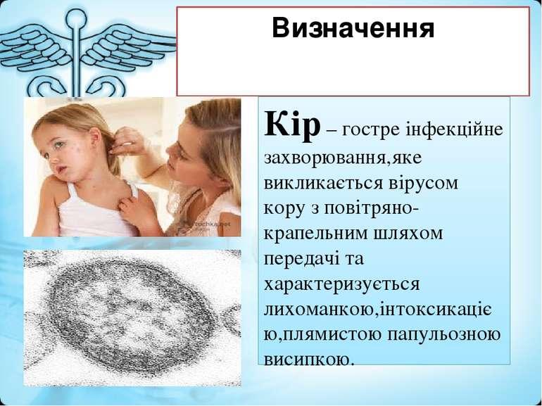 Визначення Кір – гостре інфекційне захворювання,яке викликається вірусом кору...