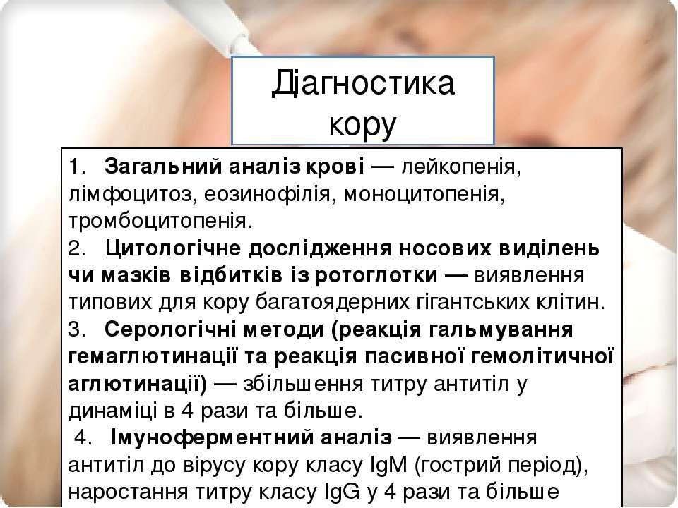 Діагностика кору Діагностика кору 1. Загальний аналіз крові — лейкопенія, лі...