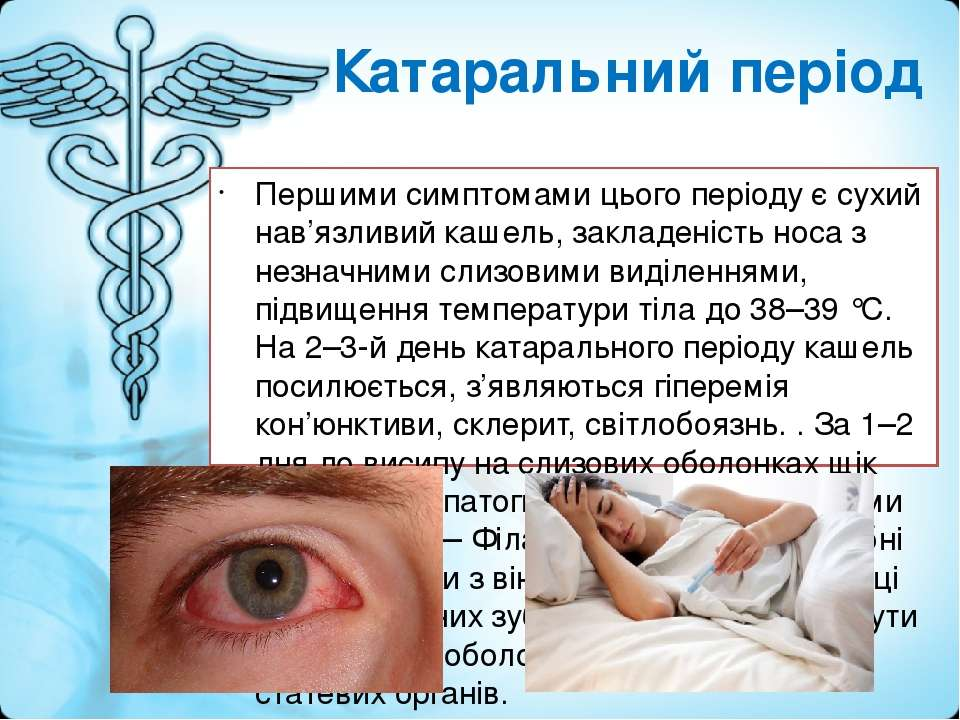 Катаральний період Першими симптомами цього періоду є сухий нав'язливий кашел...