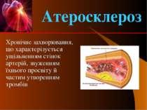 Хронічне захворювання, що характерізується ущільненням стінок артерій, звужен...