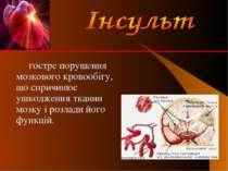 гостре порушення мозкового кровообігу, що спричинює ушкодження тканин мозку і...