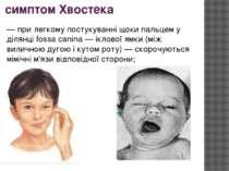 симптом Хвостека — при легкому постукуванні щоки пальцем у ділянці fossa cani...
