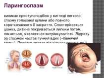 Ларингоспазм виникає приступоподібно у вигляді легкого спазму голосової щілин...