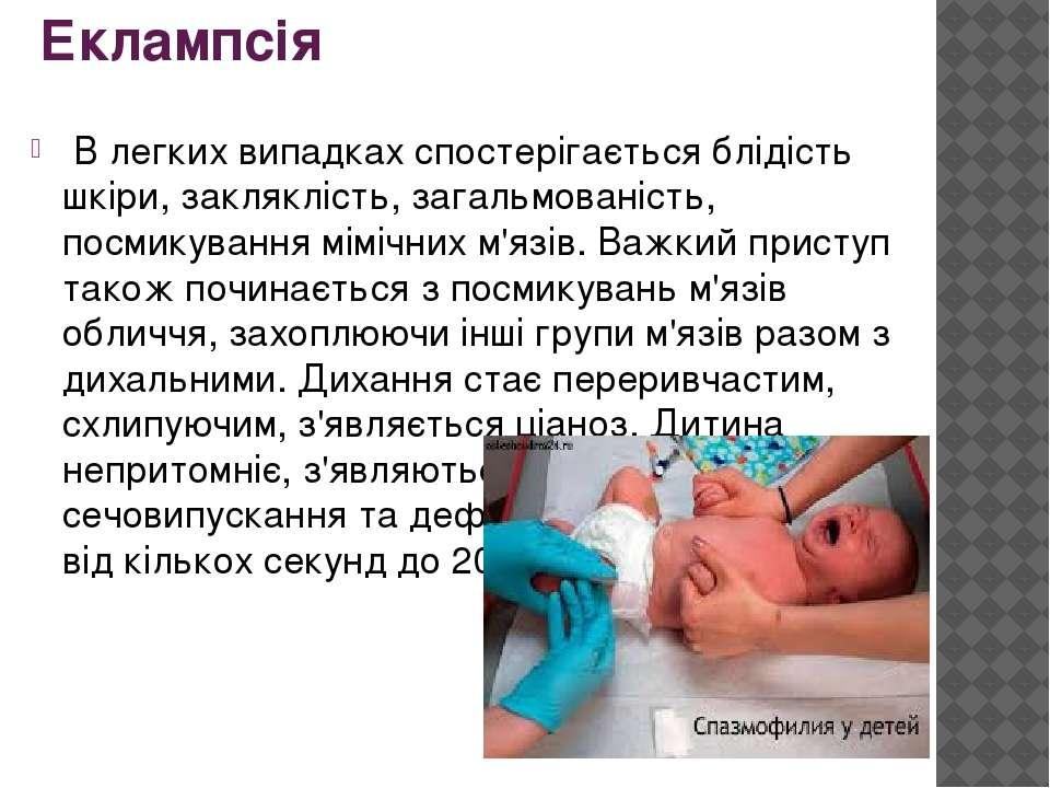 Еклампсія В легких випадках спостерігається блідість шкіри, закляклість, зага...