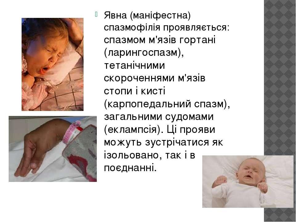 Явна (маніфестна) спазмофілія проявляється: спазмом м'язів гортані (ларингосп...