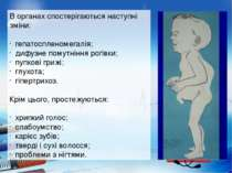 http://uk.wikipedia.org/wiki/Синдром_котячого_крику http://dermalatlas.ru/opu...