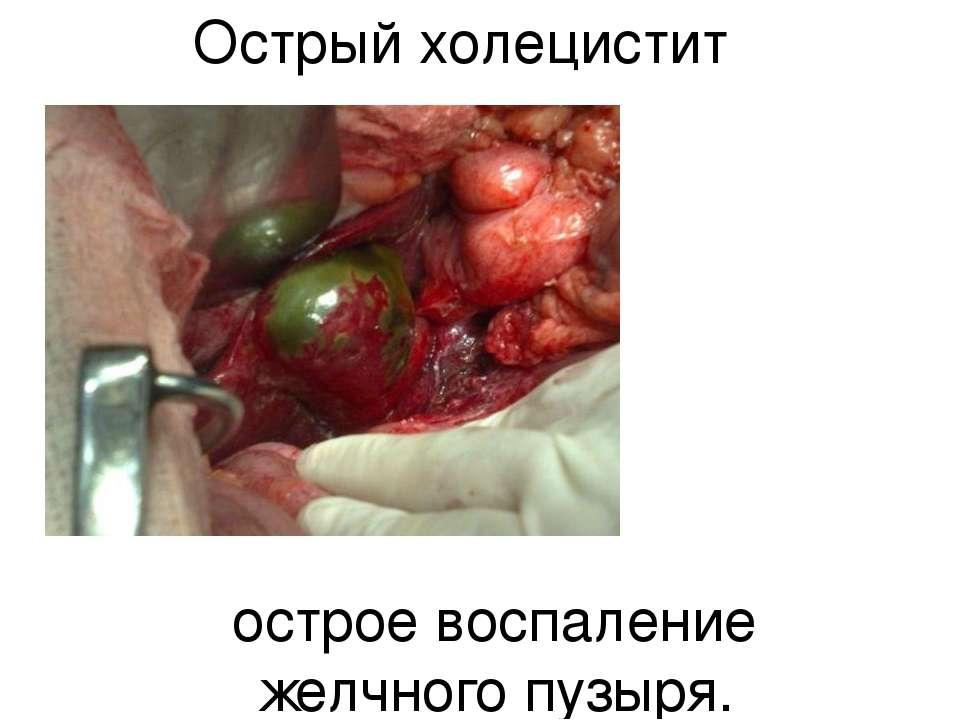 Острый холецистит острое воспаление желчного пузыря.