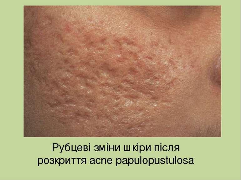 Рубцеві зміни шкіри після розкриття acne papulopustulosa