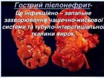 Гострий пієлонефрит- Це інфекційно – запальне захворювання чашечно-мискової с...