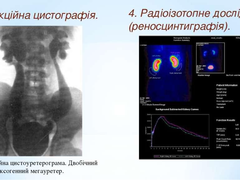 3. Мікційна цистографія. Мікційна цистоуретерограма. Двобічний рефлексогенний...
