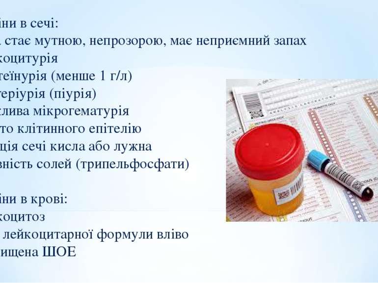 5. Зміни в сечі: Сеча стає мутною, непрозорою, має неприємний запах Лейкоциту...