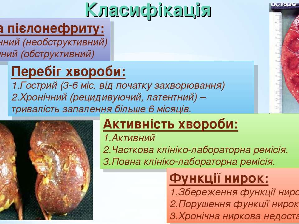 Класифікація Форма пієлонефриту: Первинний (необструктивний) Вторинний (обстр...