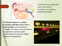 Людське вухо сприймає звуки внаслідок резонансу коливань у вушній раковині. О...