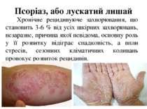 Псоріаз, або лускатийлишай Хронічне рецидивуюче захворювання, що становить 3...