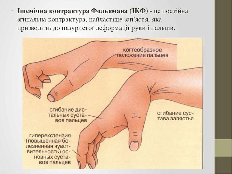 Ішемічна контрактура Фолькмана (ІКФ) - це постійна згинальна контрактура, най...