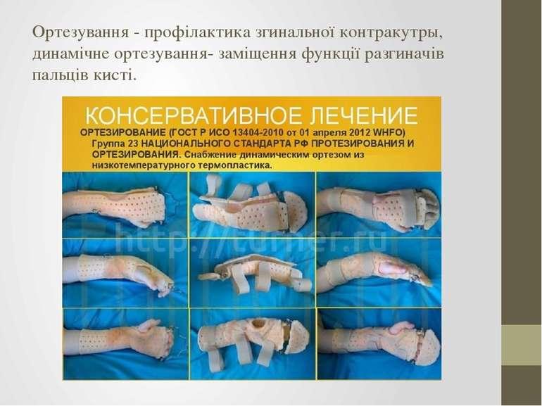 Ортезування - профілактика згинальної контракутры, динамічне ортезування- зам...