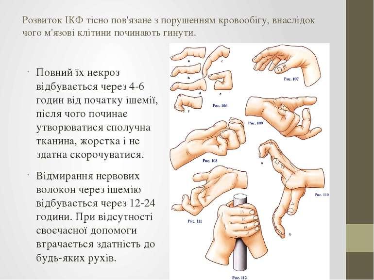 Розвиток ІКФ тісно пов'язане з порушенням кровообігу, внаслідок чого м'язові ...