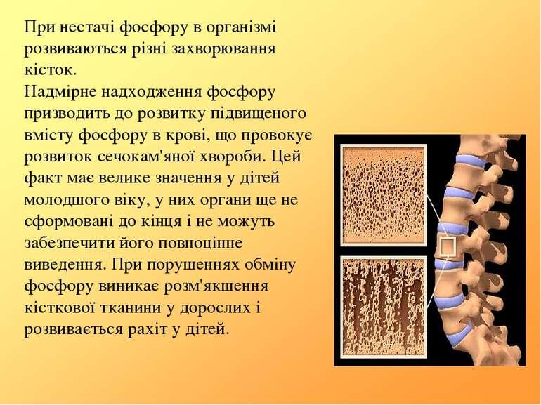 При нестачі фосфору в організмі розвиваються різні захворювання кісток. Надмі...