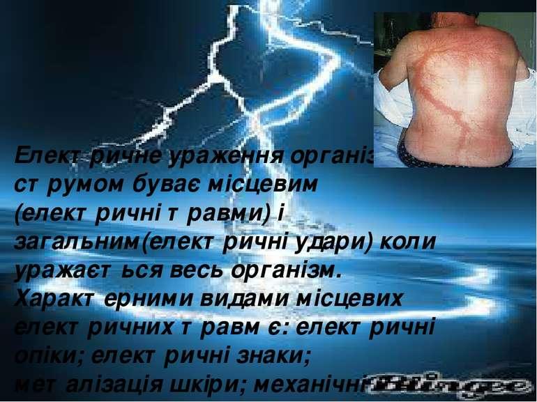 Електричне ураження організму струмом буває місцевим (електричні травми) і за...