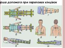 Перша допомога при переловах кінцівок