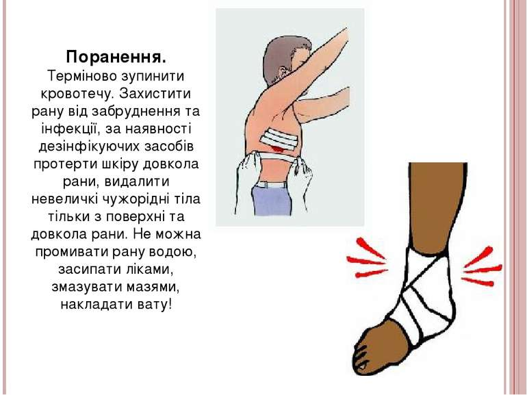 Поранення. Терміново зупинити кровотечу. Захистити рану від забруднення та ін...