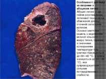 Особливості догляду за хворими з абсцесом легені Абсцес легені — це гнійне ро...