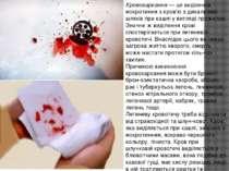 Кровохаркання — це виділення мокротиння з кров'ю з дихаль них шляхів при кашл...