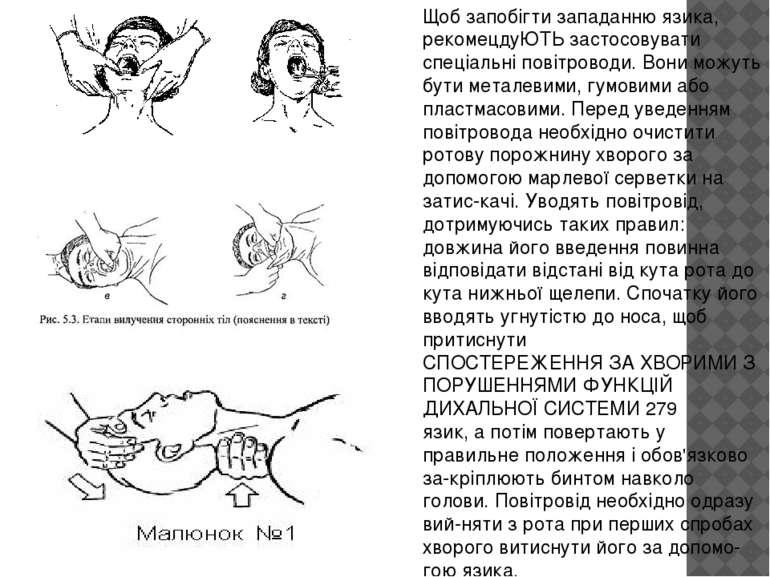 Щоб запобігти западанню язика, рекомецдуЮТЬ застосовувати спеціальні повітров...