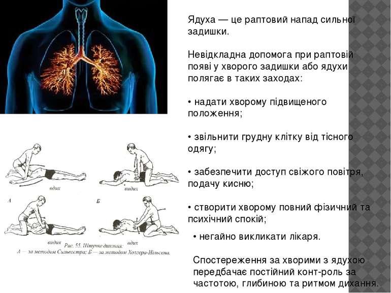 Ядуха — це раптовий напад сильної задишки. Невідкладна допомога при раптовій ...