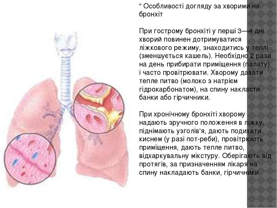 """"""" Особливості догляду за хворими на бронхіт При гострому бронхіті у перші 3—4..."""