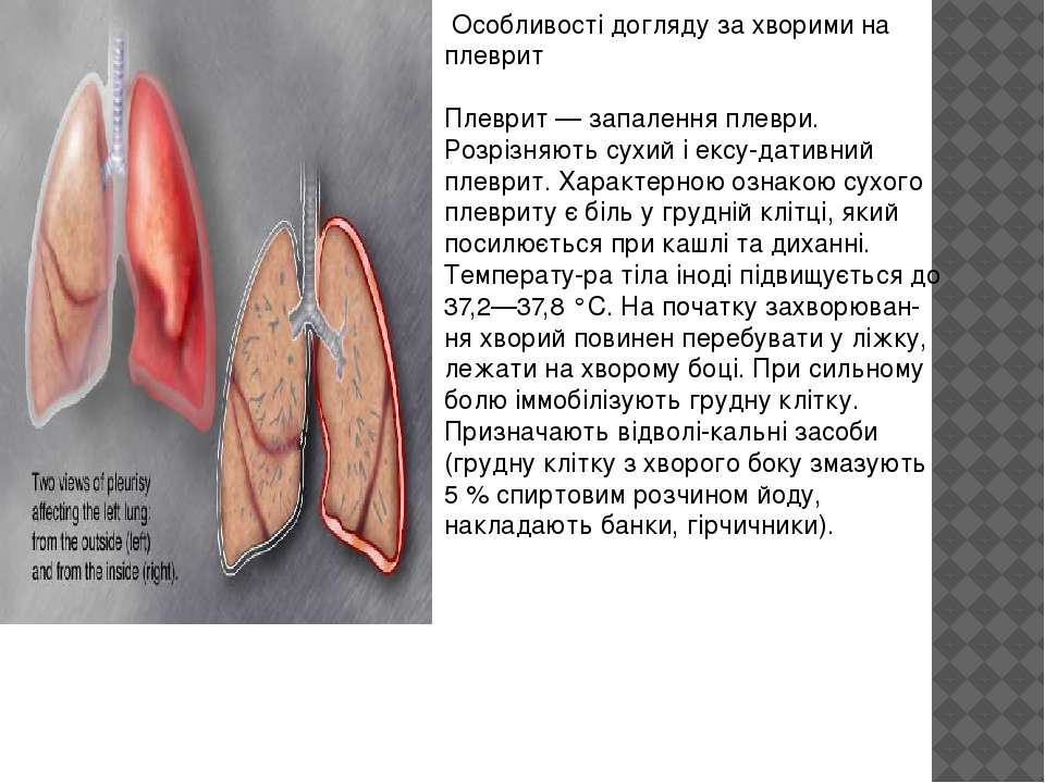 Особливості догляду за хворими на плеврит Плеврит — запалення плеври. Розрізн...